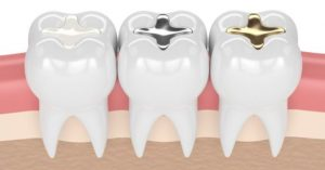 Read more about the article Let's talk about something almost every adult may encounter – dental fillings!