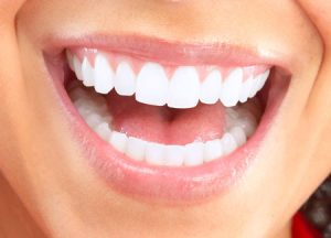 Read more about the article What are Veneers?… Cosmetic Dentistry Options to Choose From.