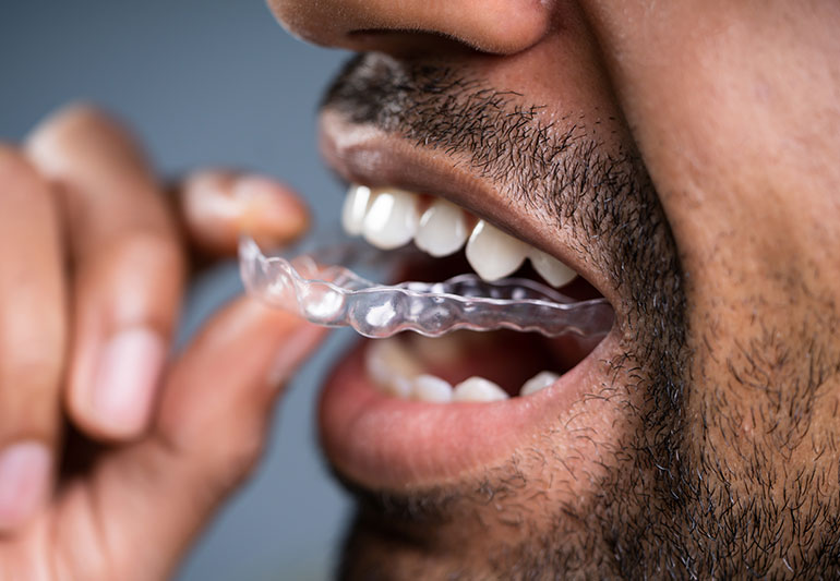You are currently viewing What is a Dental Mouthguard for?